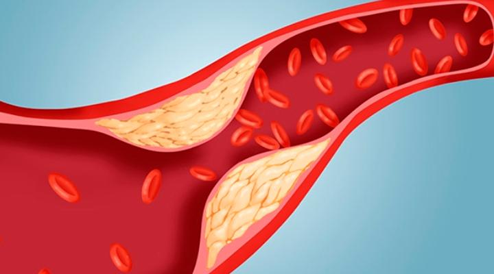 kelor menurunkan kolesterol